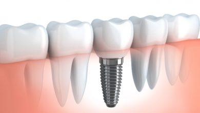 Dental Implant Treatment in Brampton