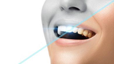 Markham dentist - Teeth Whitening